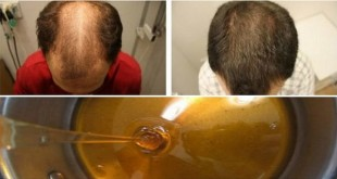 new-miracle-baldness-treatment-recipe-after-two-days-your-hair-will-begin-to-grow-back