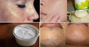 Treat-Your-Black-Spots-with-Awesome-Home-Remedies12-1