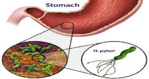Amazing-Discovery-Japanese-Doctor-Reveals-How-To-Finally-Kill-Helicobacter-Pylori-Bacteria